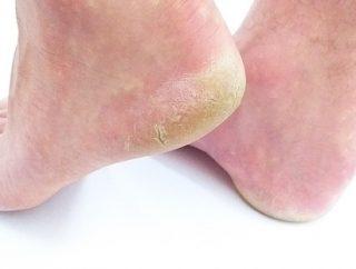 Jak sobie radzić ze suchą skórą nóg?